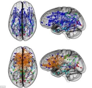 上半部(藍色線)是男性腦,下半部(橙色線)是女性腦